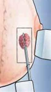 Lymphknotenentfernung Brustkrebs